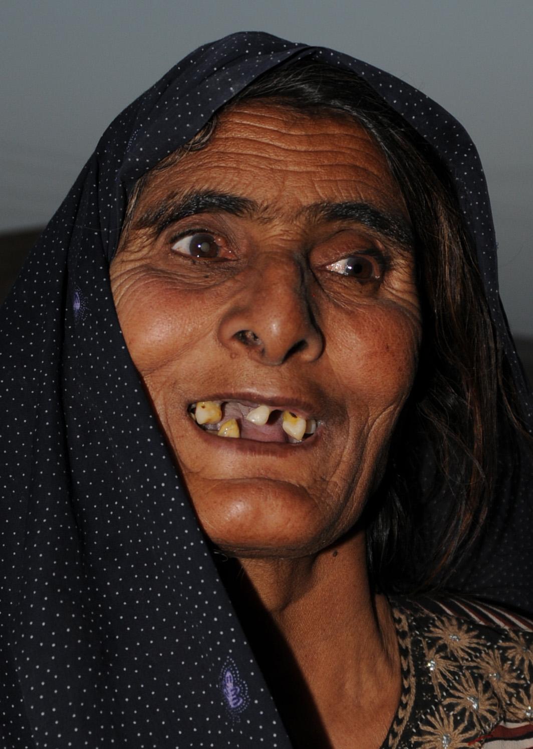 kvinna-tandlos